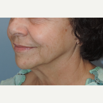 65-74 year old woman treated with Facelift before 3483132
