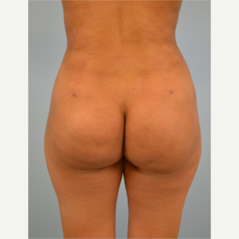 38 year old woman treated with Brazilian Butt Lift after 3432366