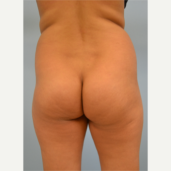 38 year old woman treated with Brazilian Butt Lift before 3432366