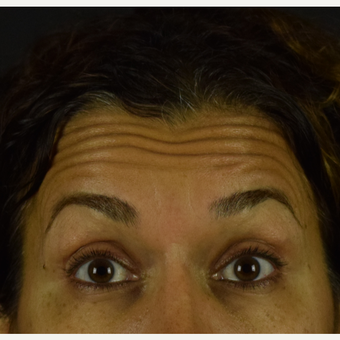 45 year old woman treated with Botox before 3691716