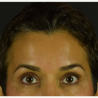 45 year old woman treated with Botox after 3691716