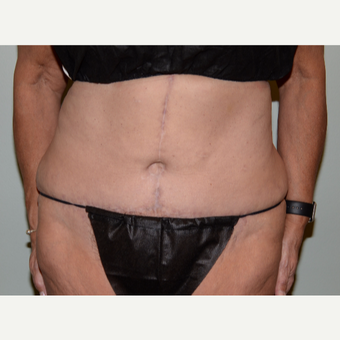 62 year old woman treated with Tummy Tuck after 3582854