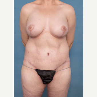35-44 year old woman treated with Body Lift after 3450537