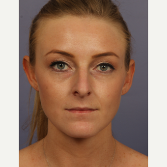 18-24 year old woman treated with Rhinoplasty before 3502695