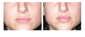 Lip Augmentation before 91872