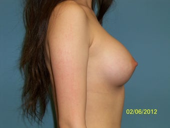 20 Year Old Female Desiring Larger Breasts after 946068