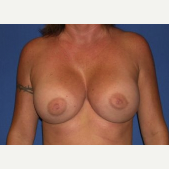 25-34 year old woman treated with Breast Augmentation after 3220040