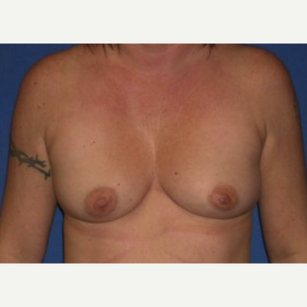 25-34 year old woman treated with Breast Augmentation before 3220040