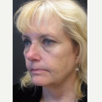 55-64 year old woman treated with Non Surgical Face Lift before 3181010