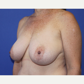 45-54 year old woman treated with Breast Reduction before 3737878