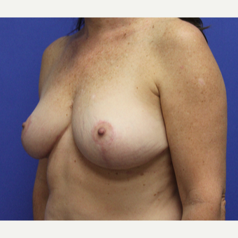 45-54 year old woman treated with Breast Reduction after 3737878