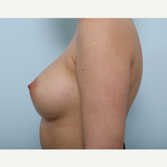 Breast Augmentation after 3340109