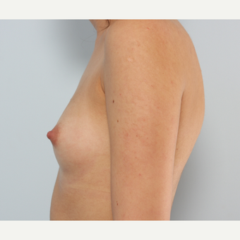 Breast Augmentation before 3340109