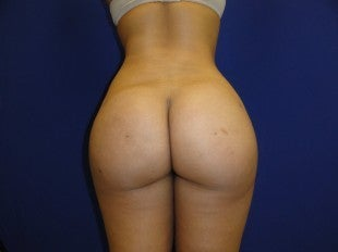 25 year old Brazilian Butt Lift after 1069855