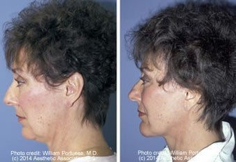Neck Lift before 91342