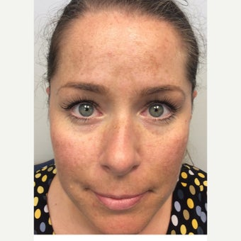 35-44 year old woman treated with Melasma Treatment before 2270359