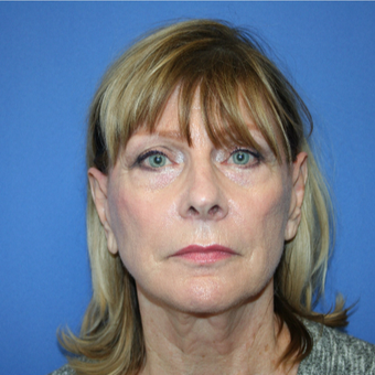 65-74 year old woman treated with Facelift before 2994448