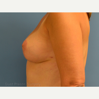 35-44 year old woman treated with Breast Lift after 3349958