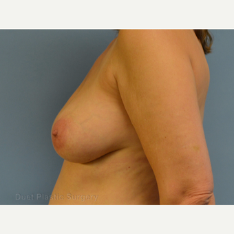 35-44 year old woman treated with Breast Lift before 3349958