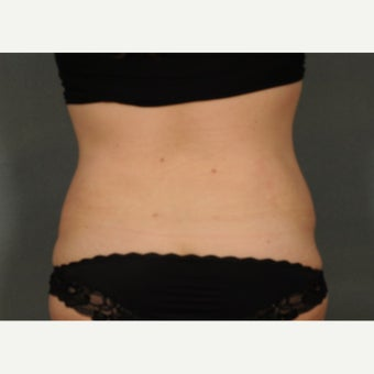 45-54 year old woman treated with Liposuction after 1861940