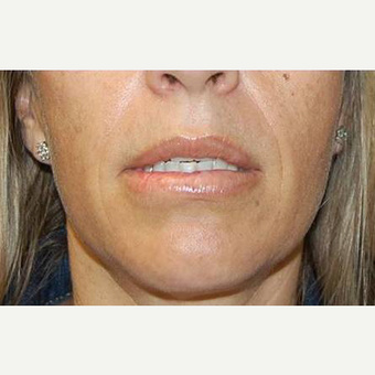35-44 year old woman treated with Lip Surgery after 3675564