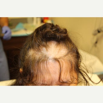 52 Year Old year old woman treated with Strip Hair Transplant 3,200 Grafts before 1566827