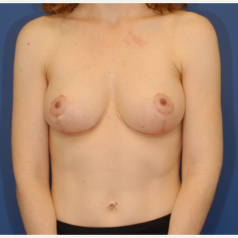 35-44 year old woman treated with Breast Reduction after 3619312