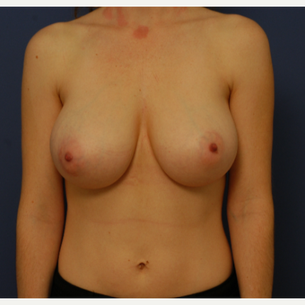 35-44 year old woman treated with Breast Reduction before 3619312
