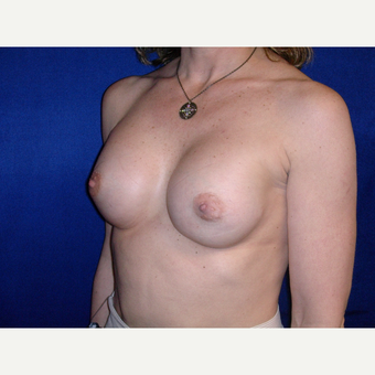 25-34 year old woman treated with Breast Implants after 3765575