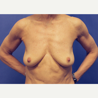 55-64 year old woman treated with Breast Augmentation before 2787879