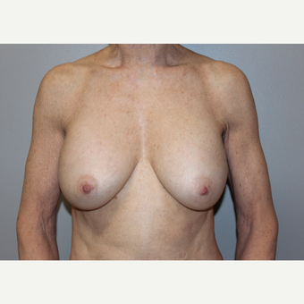 55-64 year old woman treated with Breast Augmentation after 2787879