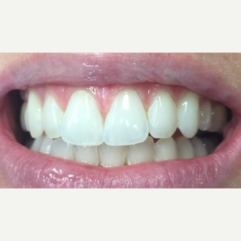 35-44 year old woman treated with Teeth Whitening after 3470198