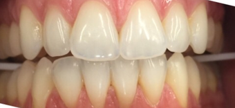 35-44 year old woman treated with Teeth Whitening before 3470198