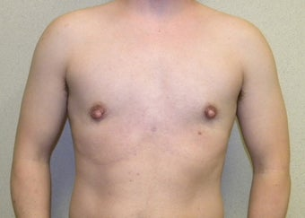 Female to Male top Surgery after 1190274