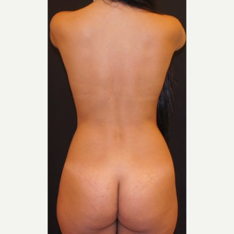 35-44 year old woman treated with Liposculpture 1893780