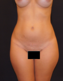 35-44 year old woman treated with Liposculpture before 1893780