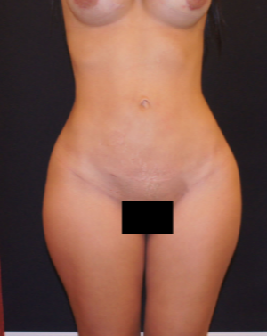 35-44 year old woman treated with Liposculpture after 1893780