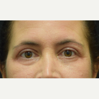 45-54 year old woman treated with Eye Bags Treatment and Eyelid Surgery after 2768200