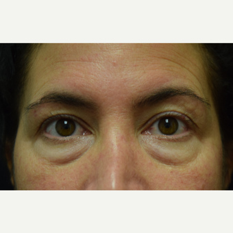 45-54 year old woman treated with Eye Bags Treatment and Eyelid Surgery before 2768200
