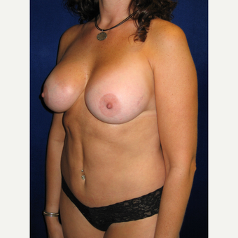 35-44 year old woman treated with Breast Implants after 3727236
