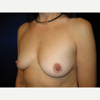 35-44 year old woman treated with Breast Implants before 3727236