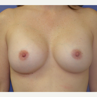 25-34 year old woman treated with Breast Augmentation after 3286990