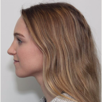 25-34 year old woman treated with Rhinoplasty after 3224692