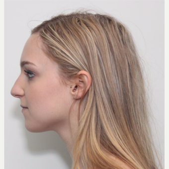 25-34 year old woman treated with Rhinoplasty before 3224692