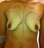 Breast Augmentation before 2021554