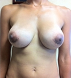 Breast Augmentation after 2021554