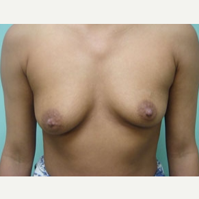 45-54 year old woman treated with Breast Augmentation before 3168191