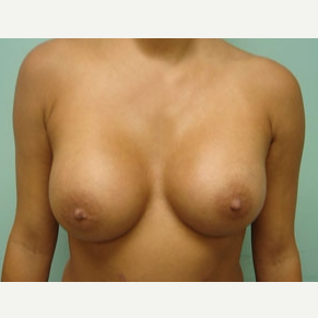 45-54 year old woman treated with Breast Augmentation after 3168191