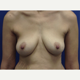 Breast Fat Transfer before 2791123