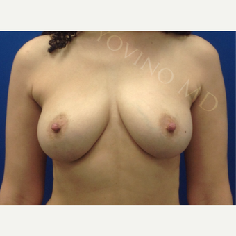 Breast Fat Transfer after 2791123